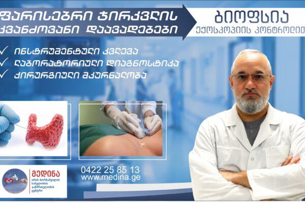ფარისებრი ჯირკვლის კვანძოვანი დაავადებების დიაგნოსტიკა და მკურნალობა